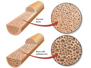 osteoporosis-bone